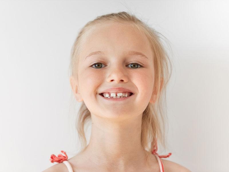 ENFANTS ET ORTHODONTIE : A QUEL ÂGE CONSULTER ?